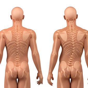 Dr. Nelson Astur Neto - Tratamentos conservadores - Implementação de diversas técnicas para reduzir os sintomas e atravancar o avanço das doenças da coluna.